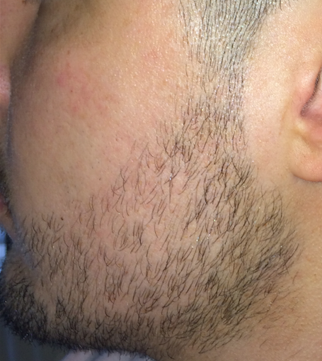 средство для роста волос alerana цена